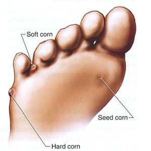 Common Corn Sites